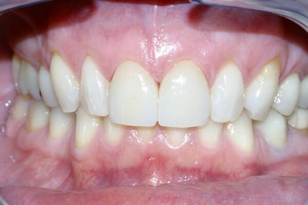 bọc răng sứ có phải lấy tủy răng
