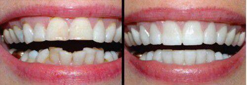bọc răng sứ cho răng lệch lạc