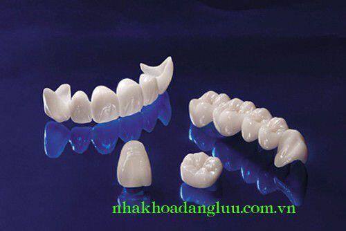 Làm trắng răng bị nhiễm tetracycline 2