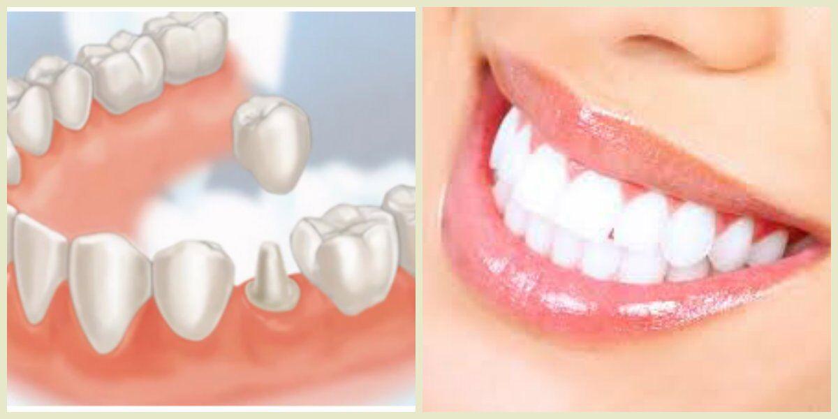 Bọc răng sứ cho răng hàm 1