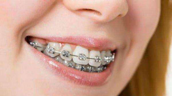Bọc răng sứ cho răng hô có được không?