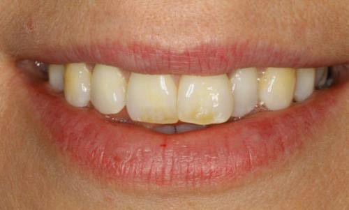 Cải thiện răng ngả màu bằng bọc răng sứ
