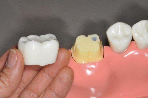bọc răng sứ cho răng sâu