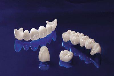 trồng răng với phương pháp bọc răng sứ