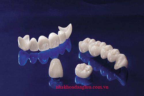 Bọc răng sứ có được lâu không ?