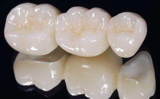 Bọc răng sứ có được vĩnh viễn không?