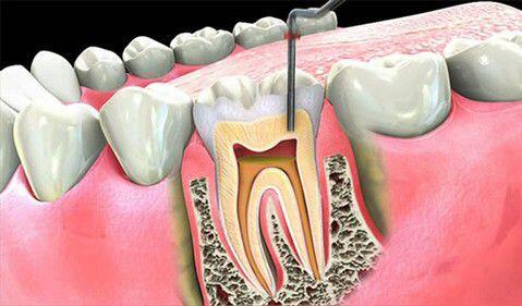 Chữa đau răng do bệnh tủy răng