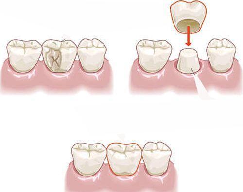 Cách để răng hết thưa nhanh nhất