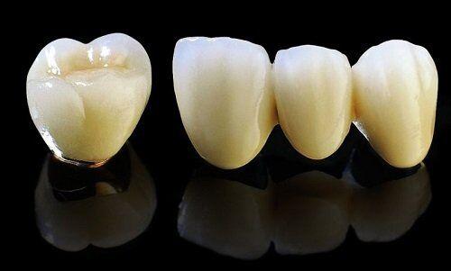 Bọc răng sứ kim loại có bị xỉn màu không?