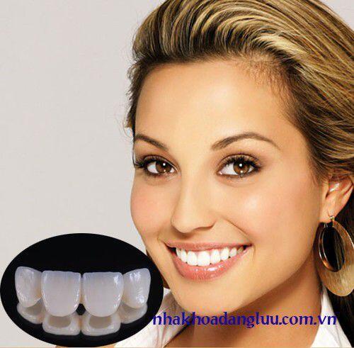 Bọc răng sứ mất bao lâu thời gian