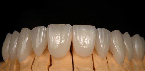 Bọc răng sứ nào tốt nhất