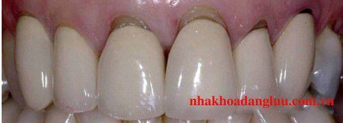 Phòng tránh và điều trị răng nhiễm fluorua