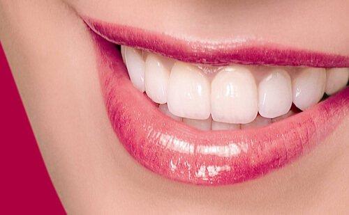 Bọc răng sứ thẩm mỹ an toàn và hiệu quả