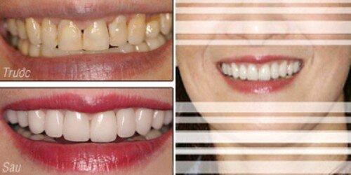 Bọc răng sứ thẩm mỹ theo tiêu chuẩn quốc tế