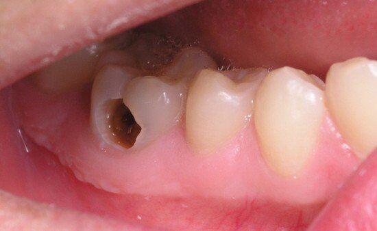 Bọc răng sứ cho răng hàm bị sâu có tốt không?