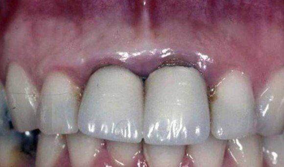 Bọc răng sứ Titan có bị đen viền nướu không?