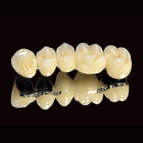 Bọc răng sứ Titan duy trì được bao lâu?