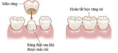 Bọc răng sứ kim loại được thực hiện ra sao?