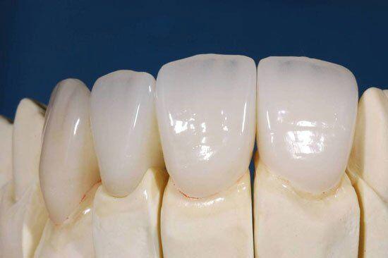Bọc răng sứ Cercon uy tín quận 5