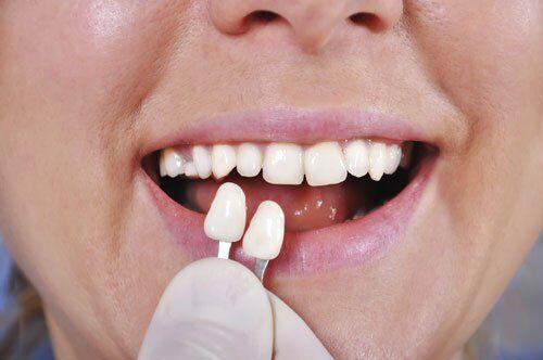 Bọc răng sứ Veneer có hại không?