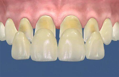 Bọc răng sứ veneer có nhứ không?