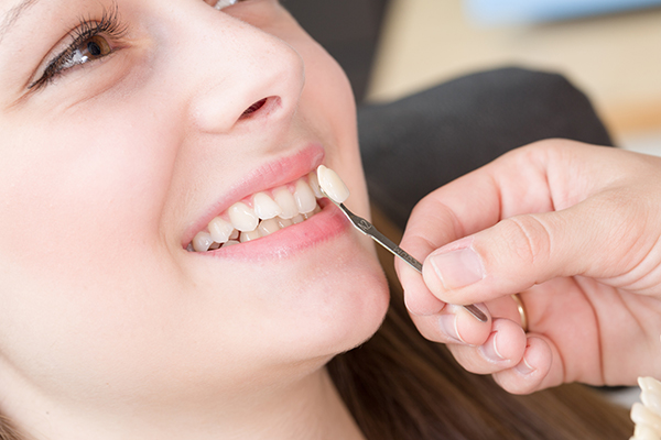 Bọc răng sứ Veneer giá bao nhiêu tiền?
