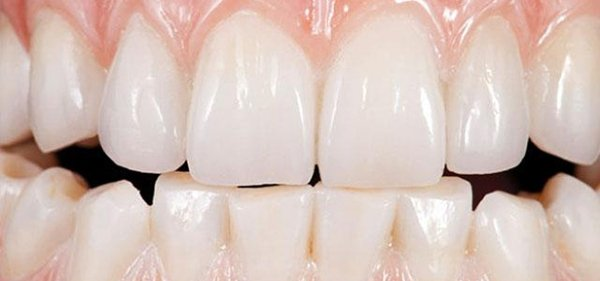 Bọc răng sứ Zirconia a cao cấp ở Tp. HCM