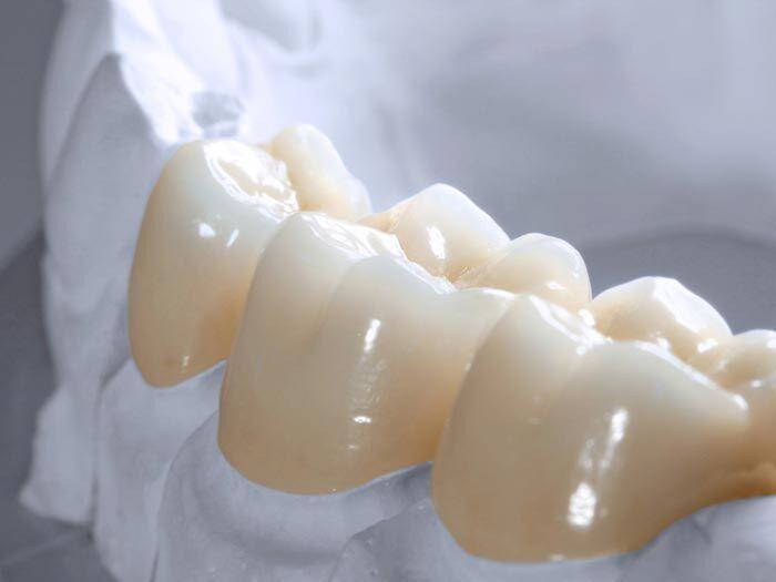 Bọc răng sứ Zirconia cao cấp ở TP.HCM