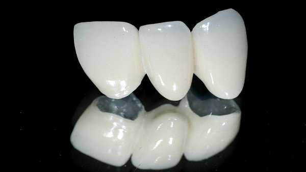 Bọc răng sứ Zirconia có tốt không?