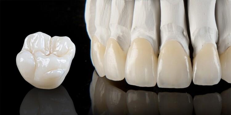 Bọc răng sứ Zirconia ở đâu đẹp tại thành phố Hồ Chí Minh?