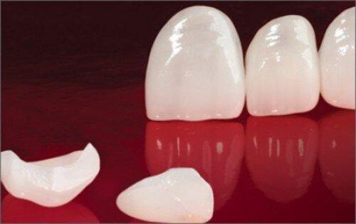 Bọc răng toàn sứ có đẹp không ?
