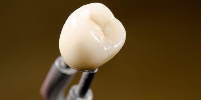 Có nên bọc sứ cho răng đã chữa tủy