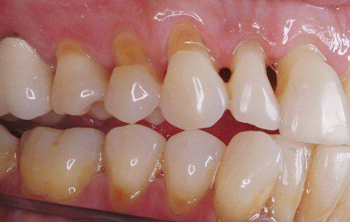 Ê buốt răng sau khi tẩy trắng