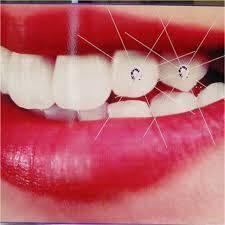 Các cách tẩy trắng răng