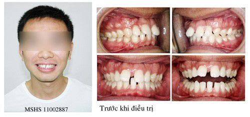 Các dạng hô răng thường gặp