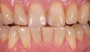 Các dấu hiệu cho thấy răng bạn đang bị lão hóa