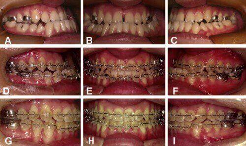 Các giai đoạn niềng răng