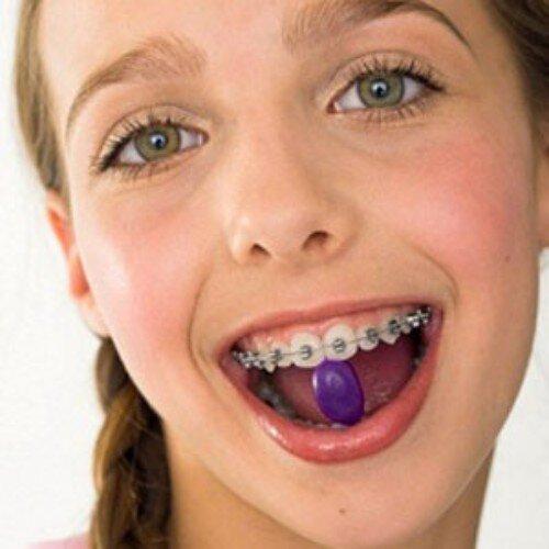 Những điều cơ bản phụ huynh cần biết khi niềng răng trẻ