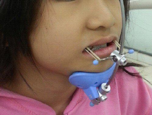 Thời điểm lý tưởng để niềng răng cho trẻ em