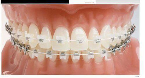 Niềng răng khấp khểnh mất bao lâu?