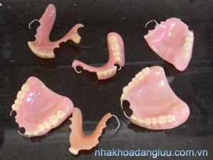 Các kiểu làm răng giả nguyên hàm