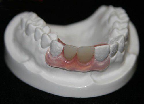 Các kỹ thuật trồng răng sứ tại nha khoa Đăng Lưu