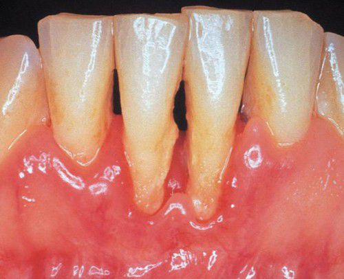Mòn răng vì thói quen chải răng hàng ngày