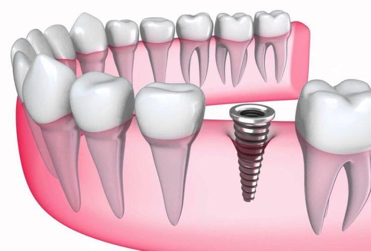 cac-loai-chan-implant
