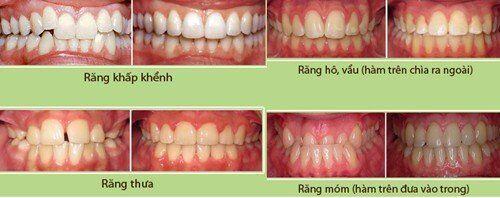 Tác hại của răng lệch khớp cắn