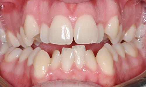 Các loại mắc cài niềng răng thông dụng hiện nay 1