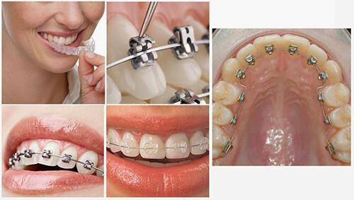 Các loại mắc cài niềng răng thông dụng hiện nay 2