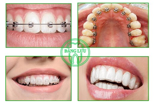 các loại niềng răng