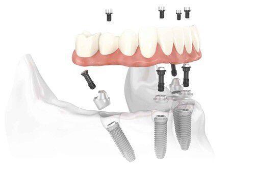 Các loại phục hình răng cố định