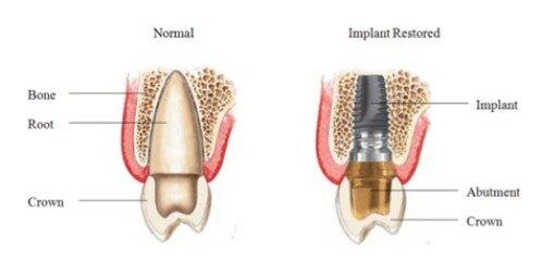 Các loại trụ implant tại nha khoa hiện nay 1